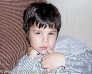 anemia infantil_cansancio_apatia copy1