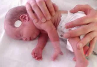 bebe_prematuro