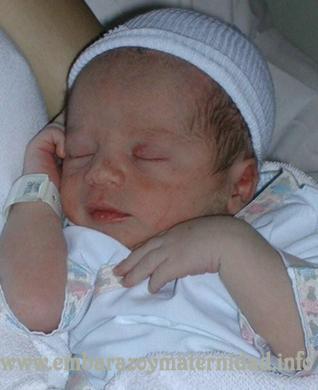 analisis FEI en recién nacidos