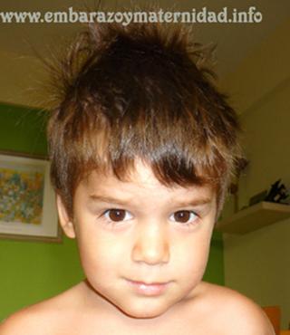 trastornos del lenguaje en los niños