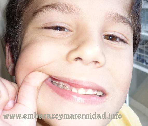 Visitas al odontopediatra: los distintos tipos de ortodoncia