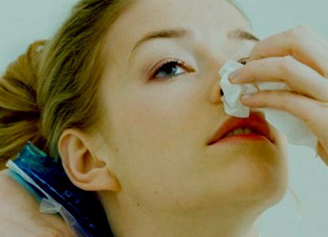 Hemorragias nasales en los niños